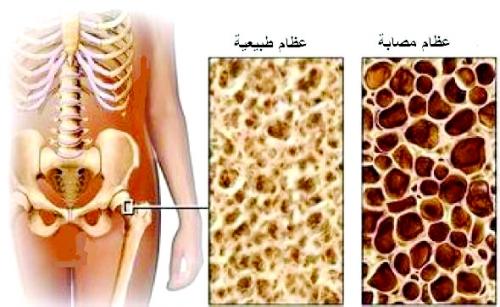 نتيجة بحث الصور عن تخلخل العظام